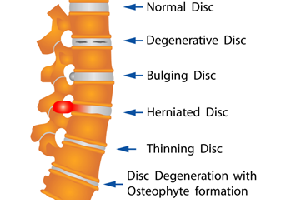 Lumbar Degenerative Disc Disease | Ultimate Things You Should Know